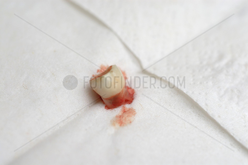 Ausgefallener Milchzahn auf Papier - Taschentuch.