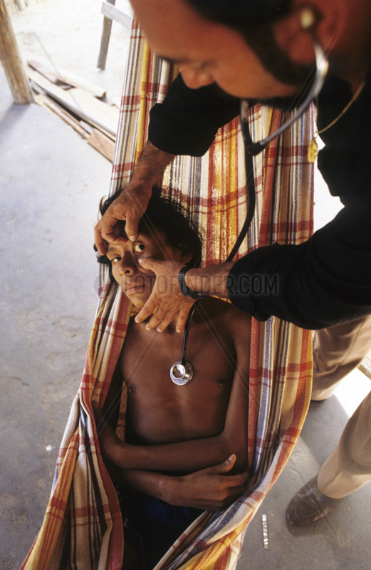 Christian Missionary at work in Amazon rainforest,  Brazil,  with Yanomami ( Ianomami ) Indigenous People. Physician takes care of sick adolescent with malaria. diseases,  sickness,  ailments,  bad health,  infirmity,  infirmities,  pathology,  pathologies