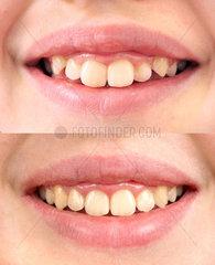 Vergleichsfotos Zahnstellung eines Kindes  vor/nach Korrektur durch eine Zahnspange