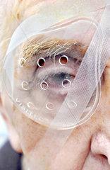 Auge eines 89jaehrigen nach Augen-OP Grauer Star