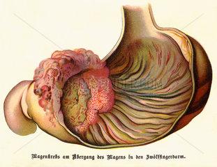 Magenkrebs  Illustration  1900