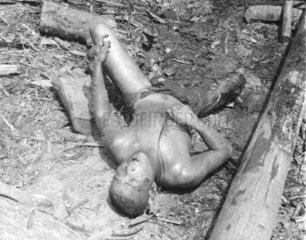 Zweiter Weltkrieg  Verbrannte Leiche