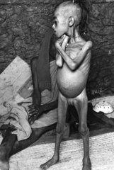 abgemagertes verhungertes afrikanisches Maedchen