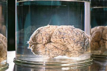 Gehirn in der Pathologie