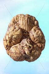 menschliches Gehirn  von unten gesehen
