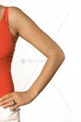 Frauenarm mit Narben am Unterarm