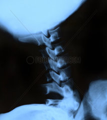 Scan of x-ray of the neck  cervical area