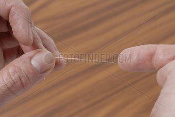 Akupunkturnadel mit Finger