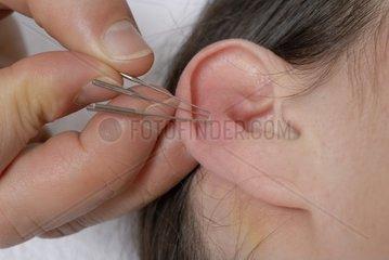 Akupunkturnadeln im Ohr