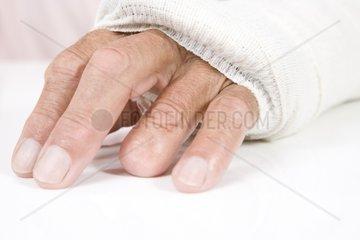 Gipsarm  Arm in Gips