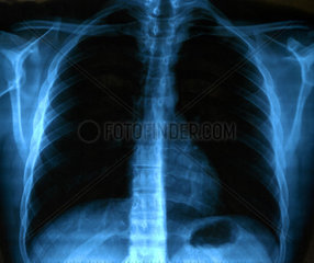 X Ray Image Of Human Healthy Chest