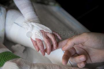 Sterbehilfe fuer Kinder - Kinderpflegedienst