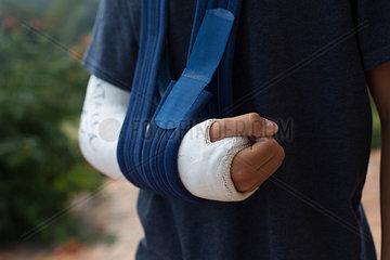 Arm gebrochen