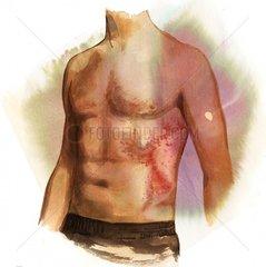 Serie Krankheiten Hautausschlag