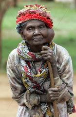 Kenia  aeltere Frau mit einer Gesichtserkrankung