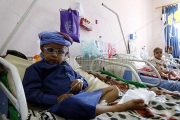 YEMEN-SANAA-CONFLICT-CANCER PATIENTS