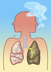 Lunge Raucher Nichtraucher