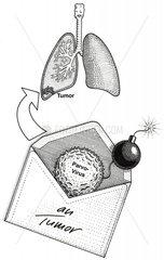 Briefbombe gegen Tumor