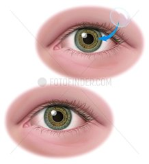Auge Glaskoerper Kontaktlinse