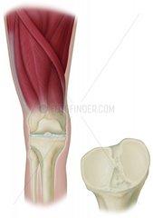 Schienbein Muskeln