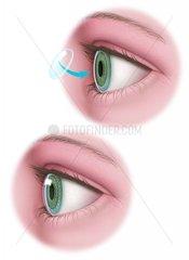 Auge Glaskoerper
