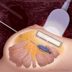 Brust Biopsie