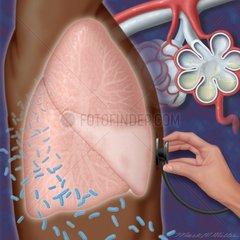 Lunge abhoeren