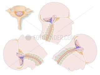 Kopf Bewegung