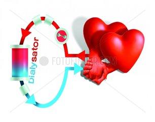 Herzdialyse