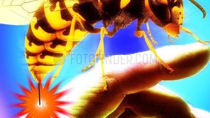 Biene sticht in die Hand