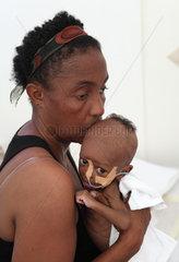 Carrefour  Haiti  eine Mutter wiegt ihr krankes  ausgemergeltes Kleinkind