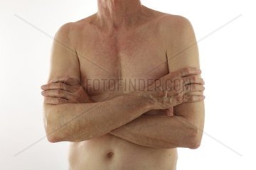 Alter Mann mit verschraenkten Armen vor freiem Oberkoerper