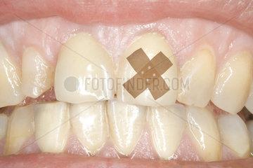Zahnpflaster
