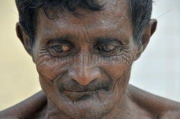 Alter kranker Mann  Sri Lanka  Ceylon  Suedasien  Asien