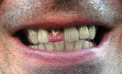abgebrochener Zahn