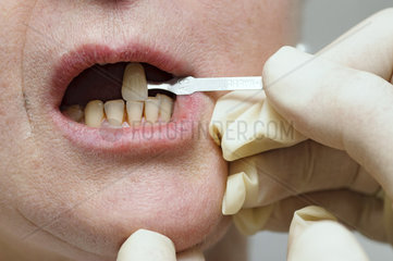 Color match the teeth of a patient