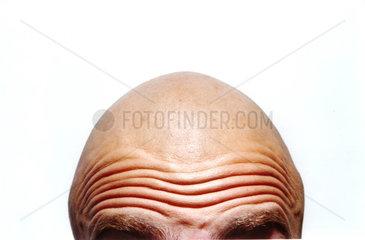 Glatze Falten