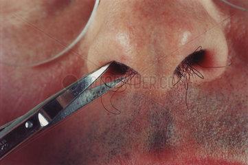 Mann schneidet mit Schere die Nasenhaare