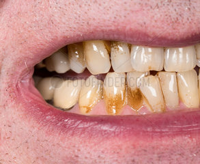 Close up of mouth with brown plaque stains