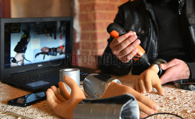 SYRIA-HAMA-ENGINEERING-PROSTHETIC HAND-AMPUTEE