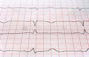 Ausdruck eines EKG  Elektrokardiogramm