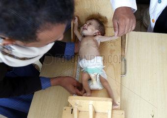 YEMEN-SANAA-CHILDREN-MALNUTRITION