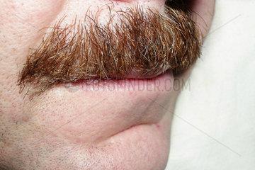 man with beard   moustache