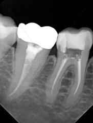 R__ntgenaufnahme eines kranken Zahns