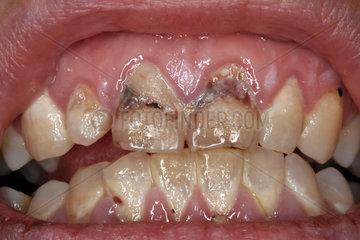 Beschaedigte Zaehne   schlechte Zaehne