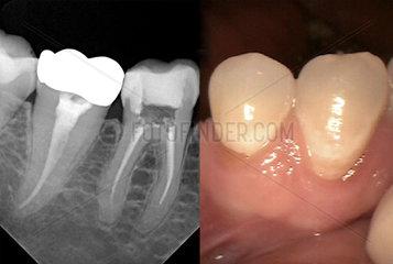 Roentgenaufnahme und Foto eines Zahns