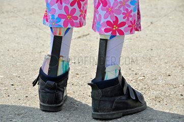 Grundschuelerin mit Beinprothesen