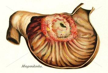 Magenkrebs  medizinisches Schaubild  um 1900