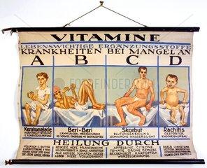 Schautafel Vitamine  Vitaminmangel 1930