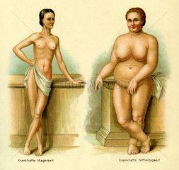 zwei Frauen  Essstoerungen  Magerkeit  Fettleibigkeit  1903